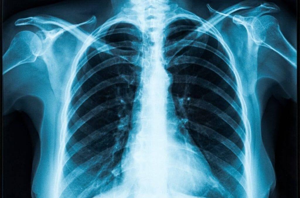 Colorado marijuana vape aerosol testing rules address key health issues